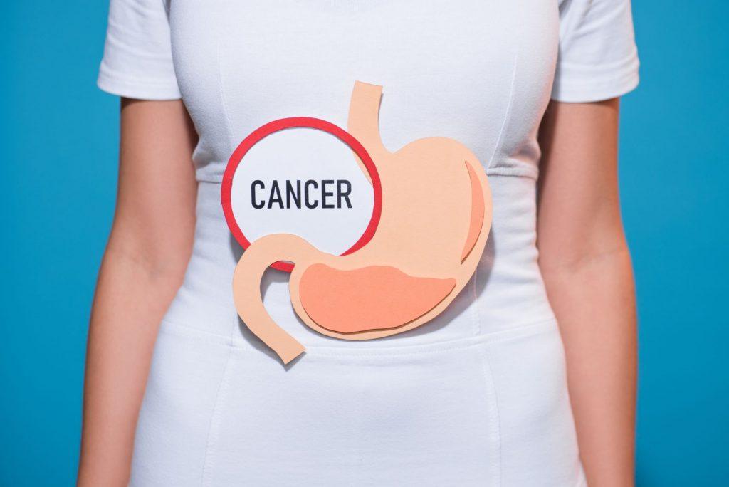 cancer estomago